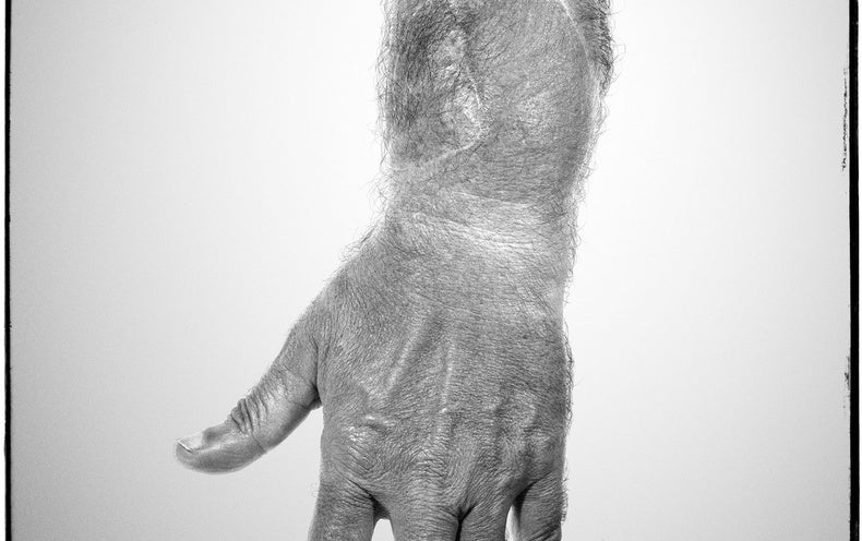 Hand Transplants Demonstrate the Nervous System's Amazing Adaptability