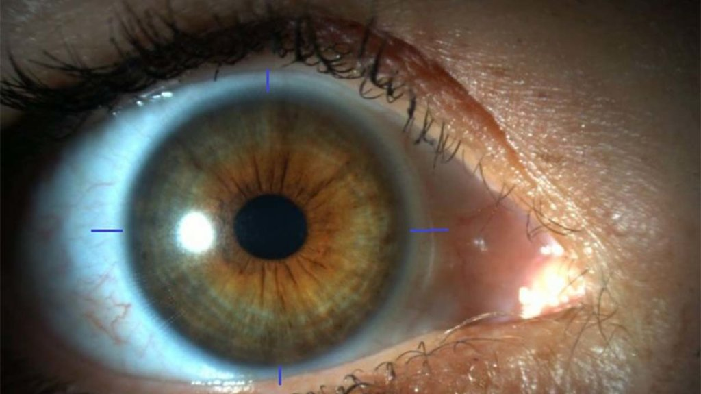 The Eyes Have It: Scientists 3-D Print Human Corneas