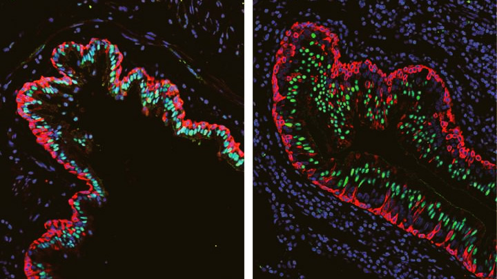 Single-Cell Study Offers New Clue into Causes of Cystic Fibrosis