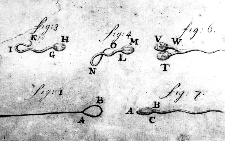 The Dirty Secret behind Some of the World's Earliest Microscopes