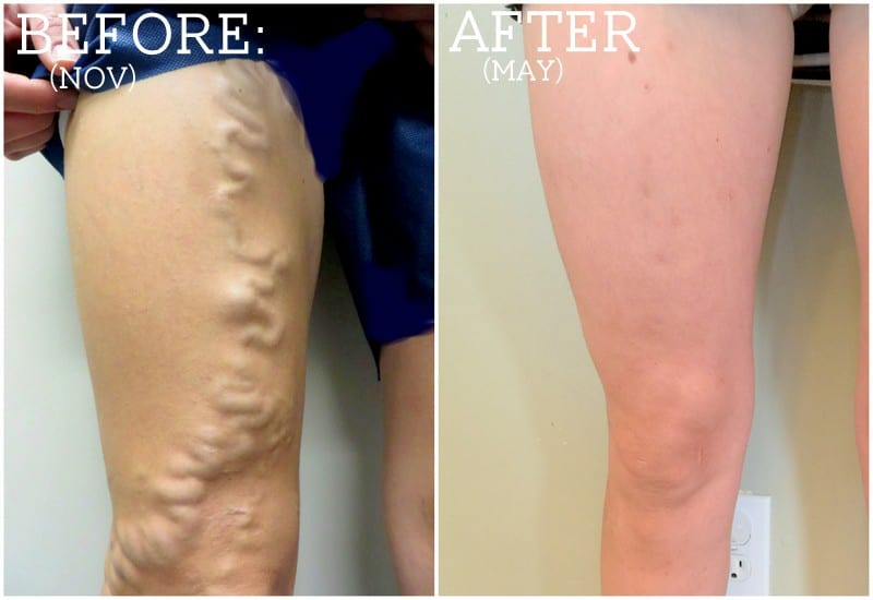 My Varicose Veins Story: Your Questions Answered
