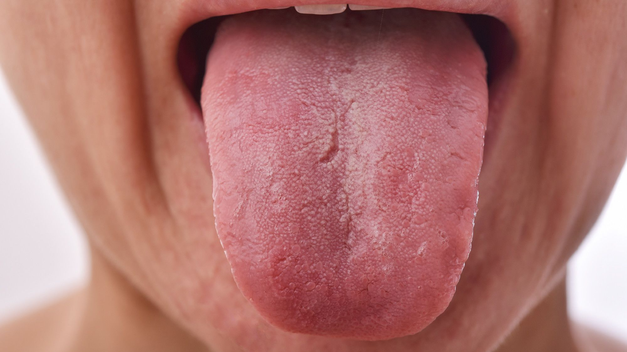 Why Your Tongue Has Cracks on It