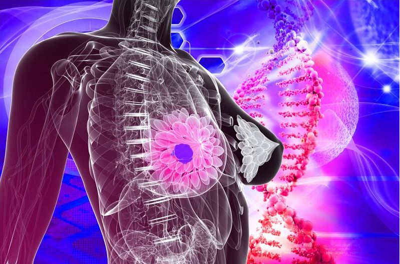 AI May Help Predict Real Risk For Breast Cancer