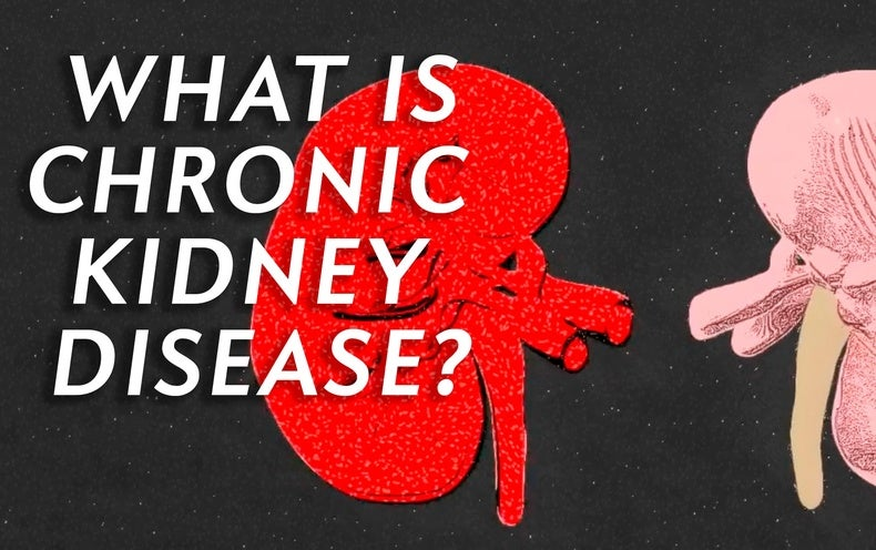 What Is Chronic Kidney Disease, and How Might It Affect You?