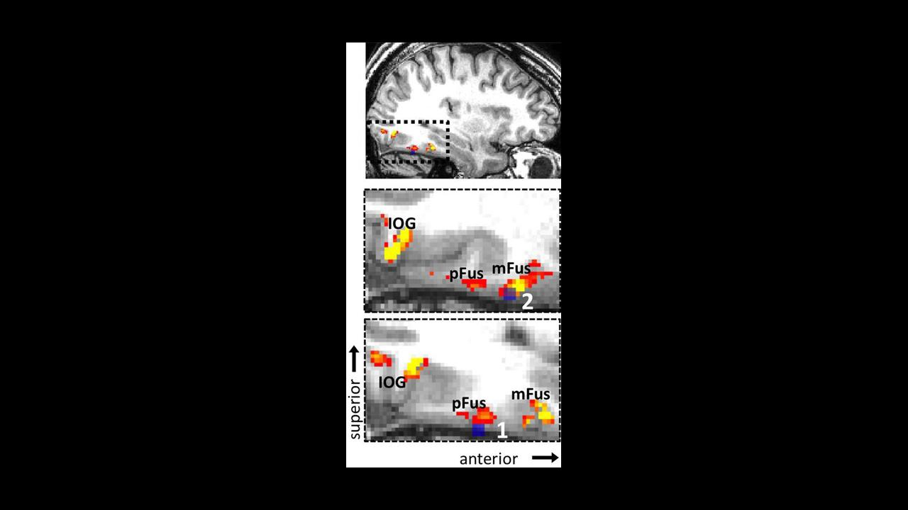 Identifying the Brain's Own Facial Recognition System