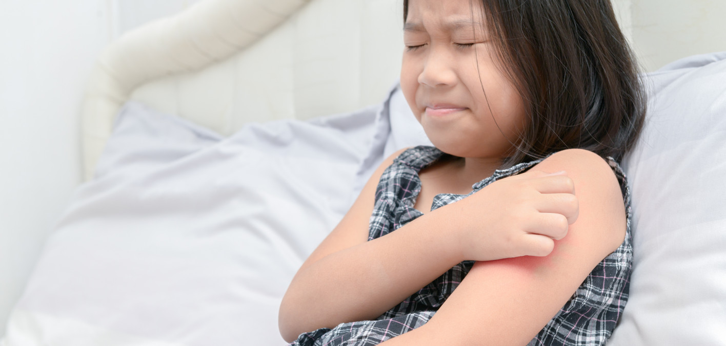 A Live Bacteria Treatment May Benefit Kids With Eczema